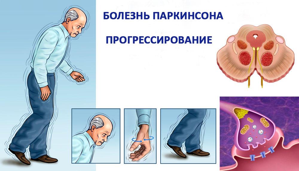 прогрессирование Паркинсона